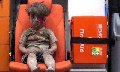 ဆေးကုသမှုခံယူရန် လူနာတင်ကားပေါ်တွင် ထိုင်နေသည့် အသက် ငါးနှစ်အရွယ် အိုမရာ ဒတ်နိရှ်အား တွေ့ရစဉ် (ဓာတ်ပုံ- အင်တာနက်)